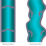 One varicose vein with damaged valves and one normal vein.