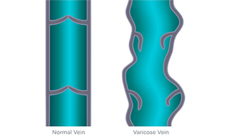 Venous Stasis: Difference between normal and varicose veins