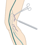Ambulatory Phlebectomy for varicose vein treatment