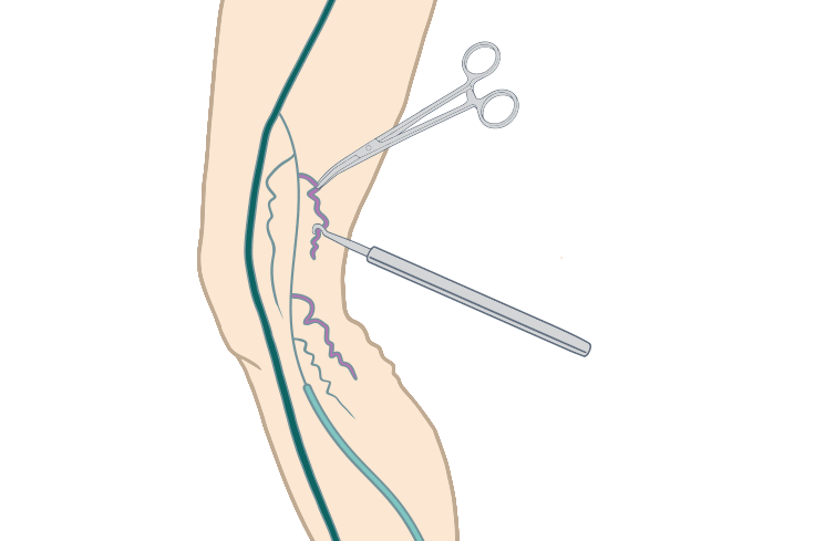 Image of Ambulatory Phlebectomy, showing how branch varicose veins are removed.