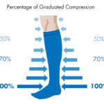 Compression Stockings for venous reflux