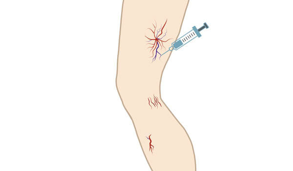 Image of spider vein treatment using sclerotherapy