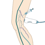 Ultrasound guided sclerotherapy varicose vein treatment.