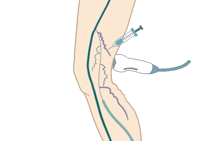 Image of how ultrasound is used to locate the varicose veins under the skin for sclerotherapy.